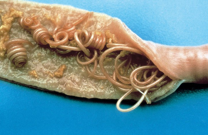 remedy for worms hatching in anus